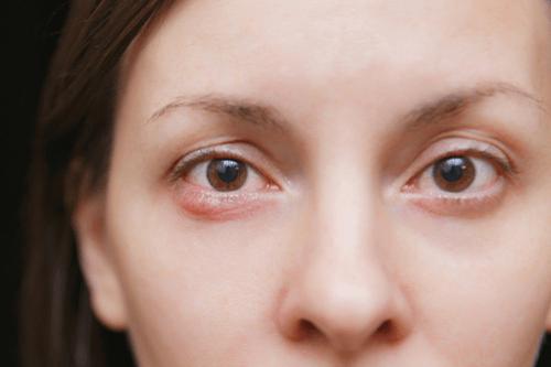 Abscess eyelid
