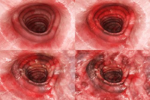 Amoebiasis colitis