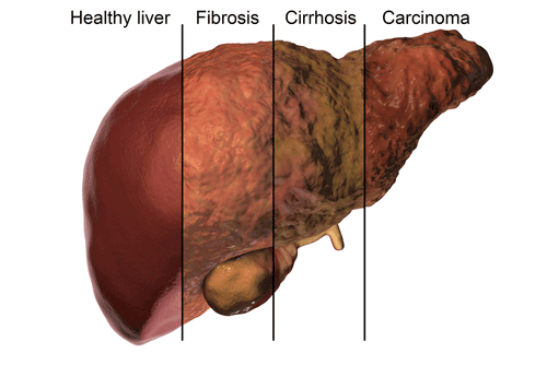 fatty liver disease overview causes symptoms treatment factdr