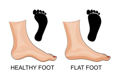 Flatfeet vs normal