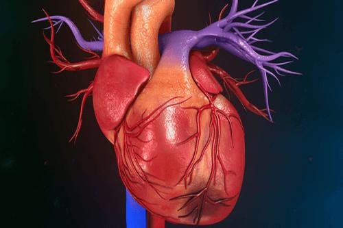 Myocardial infarction 3D