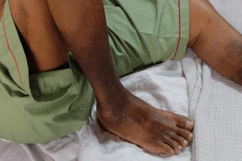 Peripheral artery poor circulation