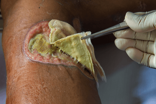 Pus : Overview, facts, causes, types, complications
