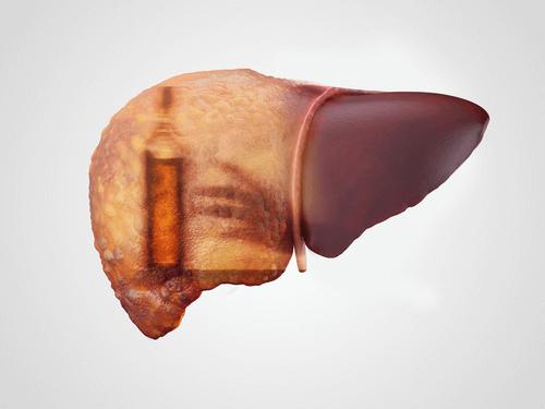 alcoholism and liver