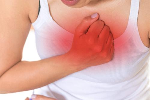 costochondritis pain