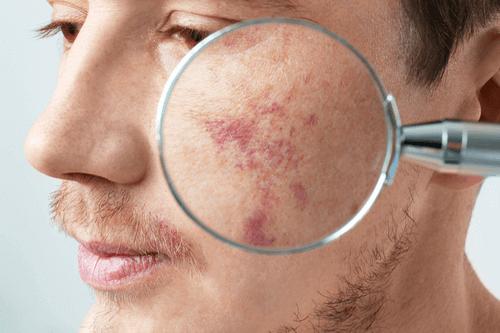 Birthmark maginified
