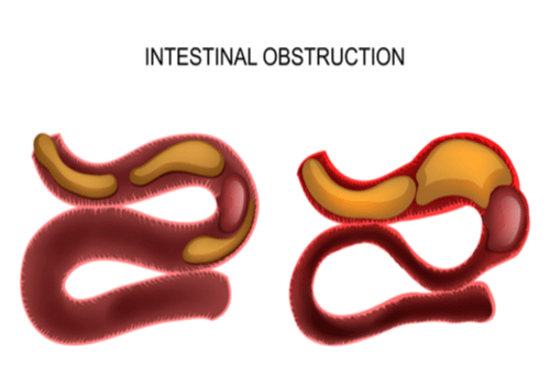 Bowel obstruction intestine