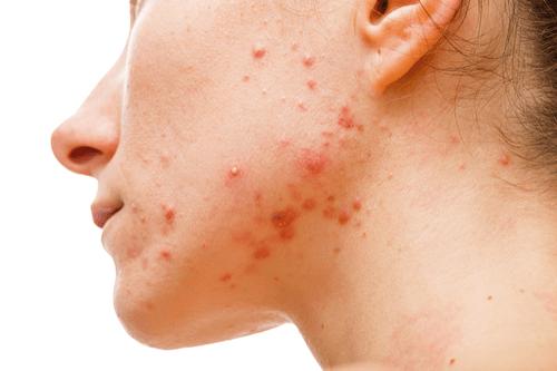 Comedones acne