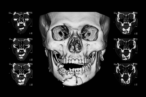 Dislocated jaw xray