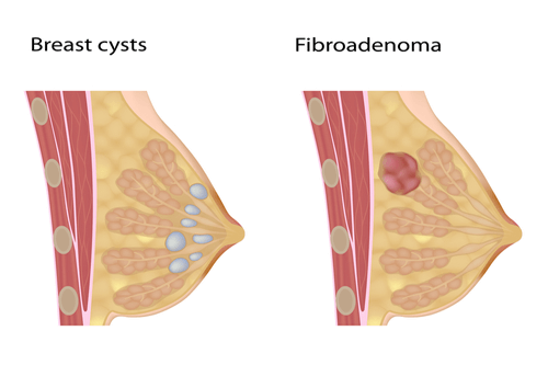 Fibrocystic and friboadenoma