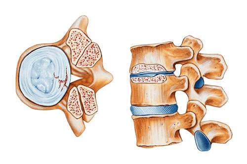 Spinal stenosis degeneration