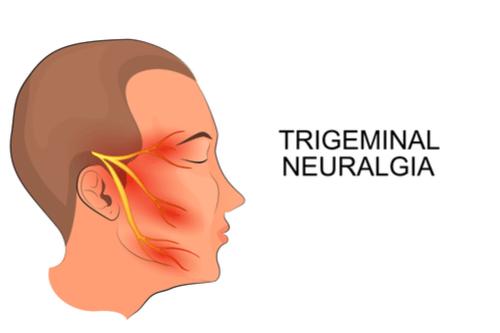 Trigeminal pain