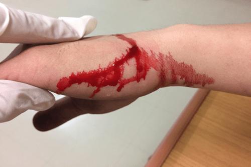 Hemophilia bleeding