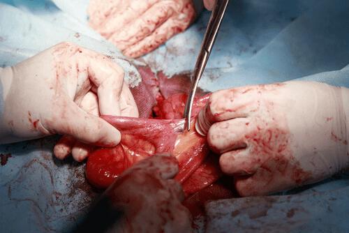 Intestinal adhesions surgery