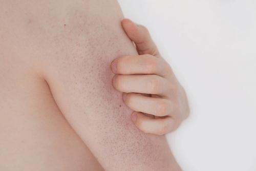 Keratosis Pilaris itching