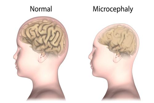 Microcephaly head