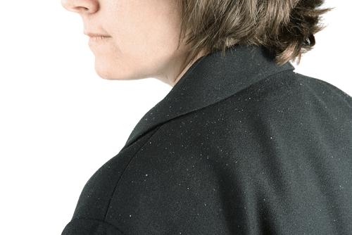 Seborrhoeic dermatitis dandruff