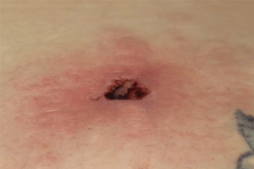 brown recluse spider bite-