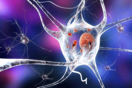 lewy body dementia neurons