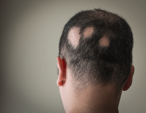 Alopecia hair loss pattern