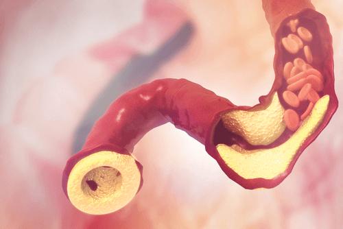 Cholesterol in blood