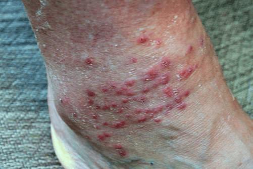 Chiggers bite