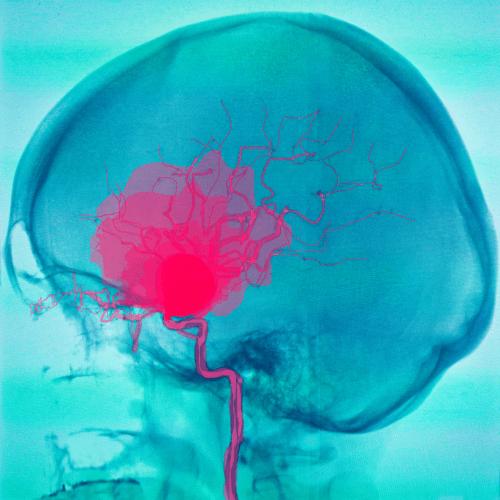 ANEURYSM brain