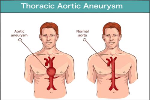 ANEURYSM thoracic