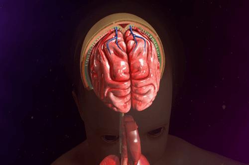 ARACHNOIDITIS meninges