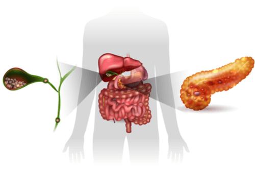 Acute cholecystitis gallbladder