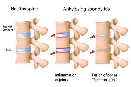 Ankylosing spondilytis diagram