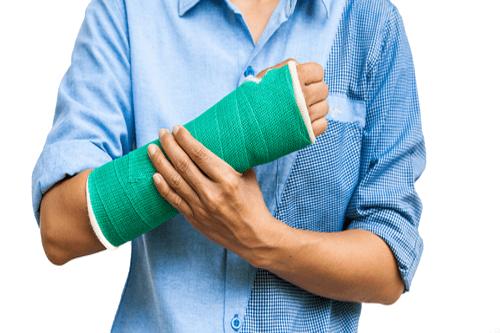 Arm fracture cast