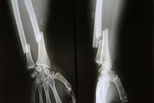 Arm fracture xray