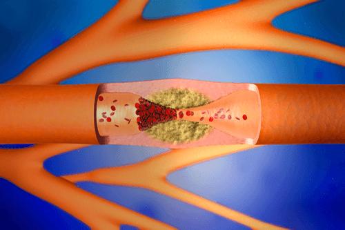 Arteriosclerosis arteries