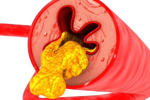 Arteriosclerosis clogged