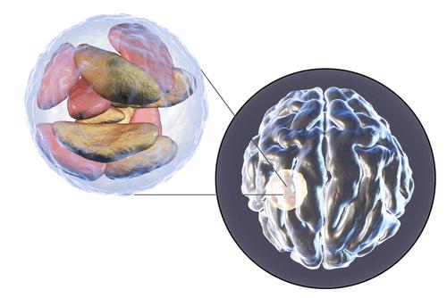 BRAIN CYSTS abscess