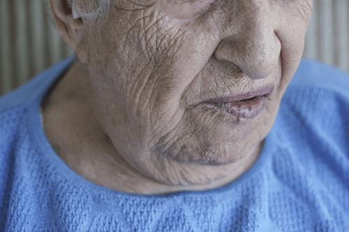 Bells palsy in seniors