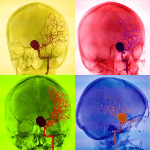 CEREBRAL ANEURYSM MRI