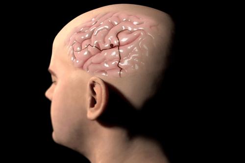 CEREBRAL ANEURYSM skull