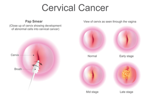 CERVICAL CYSTS