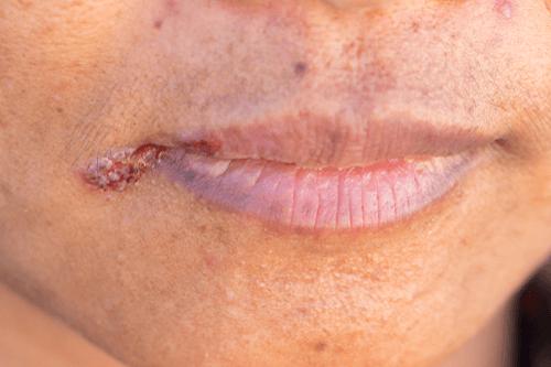 Cheilitis on lips