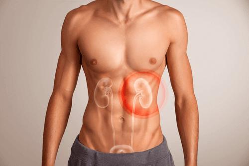 Chronic Kidney Disease Causes Symptoms Treatment Factdr