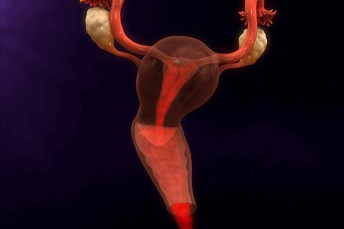 Chronic pelvic pain menstruation
