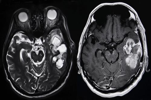 Colloid cyst brain