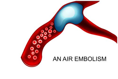 EMBOLISM air