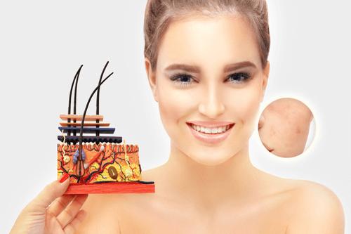 FOLLICULITIS acne