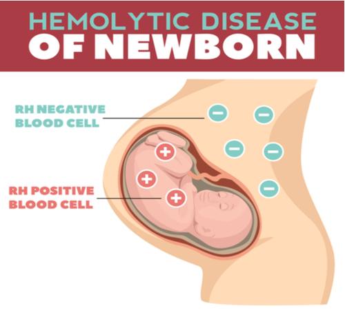 HAEMOLYTIC ANAEMIA fetus