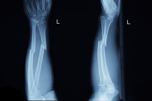 Hand fracture xray