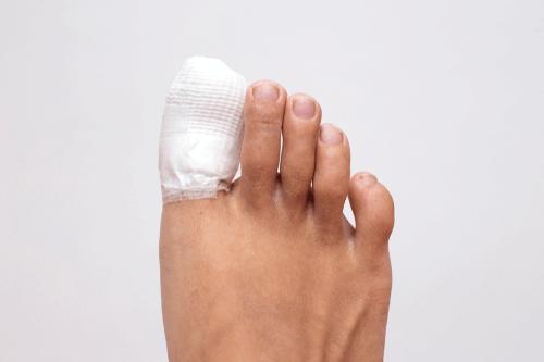 Ingrown toenail healing