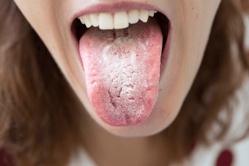 Leukoplakia tongue
